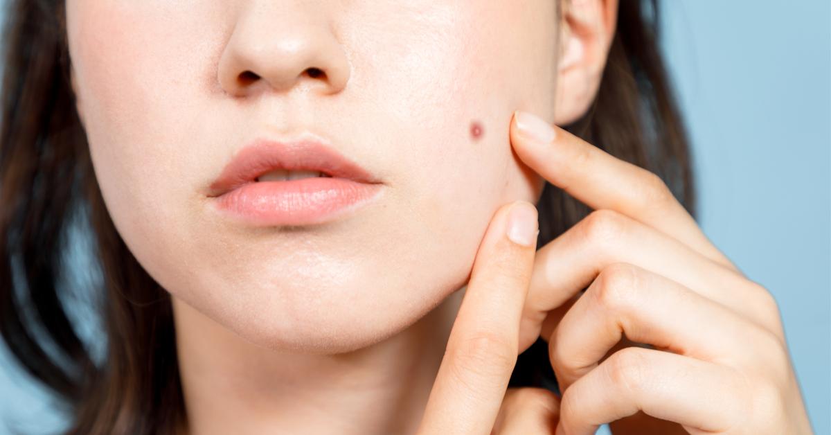 سبب ظهور حبوب في الوجه فجأة ويب طب