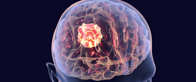 تعرف على درجات سرطان الدماغ ويب طب