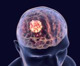 درجات سرطان الدماغ