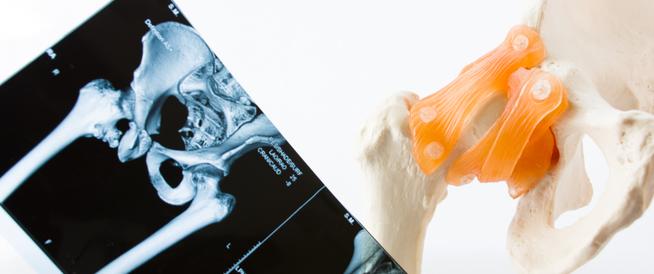 أعراض خلع الولادة وكيفية تشخيصه وعلاجه