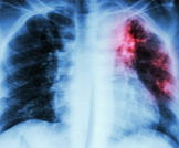 معلومات عامة عن السل خارج الرئة