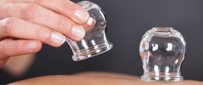 cupping for pregnancy
