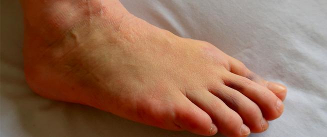 تورم الجسم وانتفاخ القدمين بعد الولادة: معلومات هامة