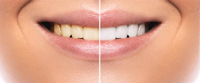 علاج حساسية الأسنان بعد التبييض