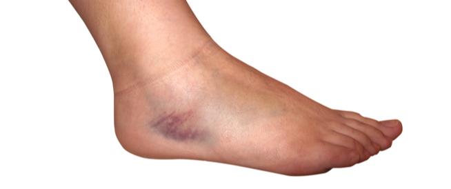 كدمات القدم: ماذا يجب أن تعرف عنها؟