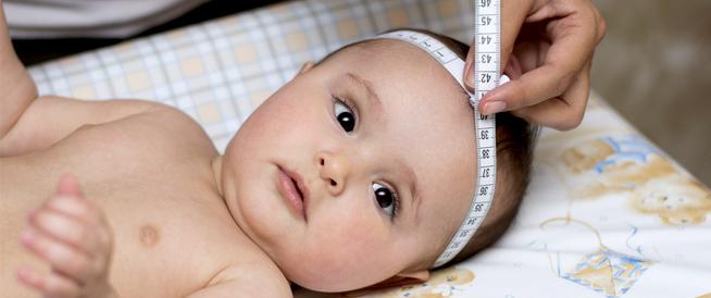 محيط رأس الطفل صغير: حالة مرضية أم عابرة؟