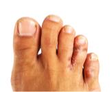 علاج تينيا القدم