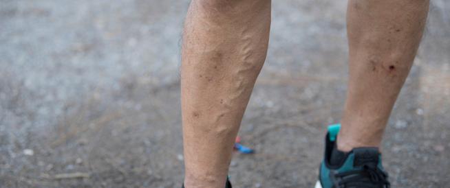 الدوالي عند الرجال في الساقين