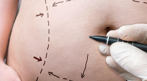 عملية شد البطن: دليلك الشامل