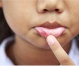علاج تقرحات الفم للأطفال: دليلك الشامل
