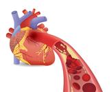كم عدد شرايين القلب؟