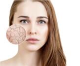 أسباب جفاف الوجه وطرق العلاج