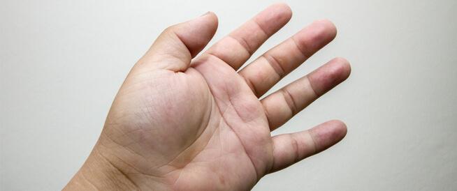 انتفاخ أصابع اليد عند الاستيقاظ