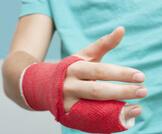 أعراض كسر الإصبع وكيفية العلاج
