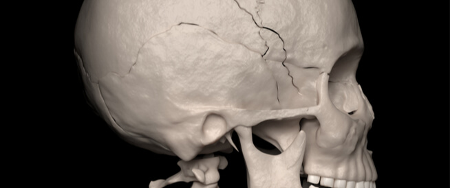 التئام عظام الجمجمة