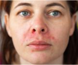 كيفية علاج حساسية الوجه من الشمس
