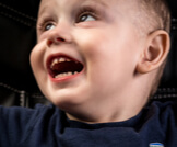 تسوس أسنان الرضع: كل ما تريد معرفته عنه
