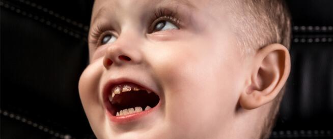 كل ما تريد معرفته عن تسوس أسنان الرضع