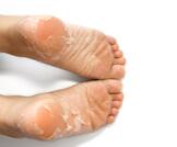 طرق إزالة الجلد الميت من القدمين