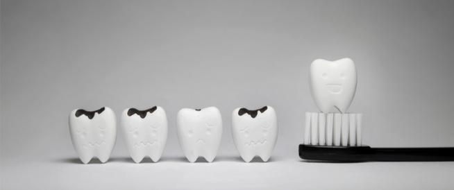 ما أسباب تسوس الأسنان رغم تنظيفها