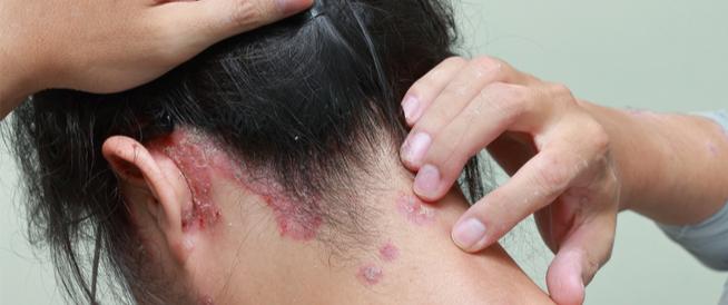 ماذا تسبب بكتيريا وفطريات فروة الرأس؟
