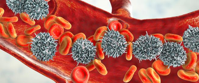 هل سرطان الغدد الليمفاوية مميت؟