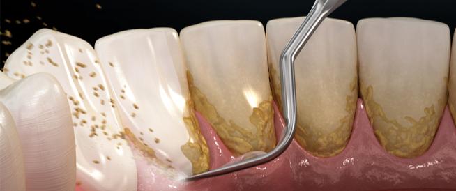 طرق تنظيف الأسنان من الجير