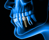 أضرار زراعة الأسنان هل تفوق فوائده؟