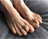 اعوجاج أصابع القدم: دليلك الشامل