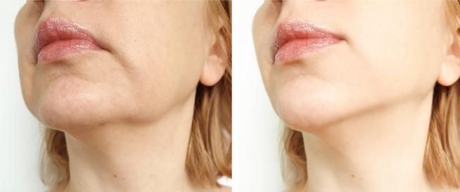 هل يمكن علاج ترهل الوجه؟