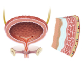التهاب جدار المثانة