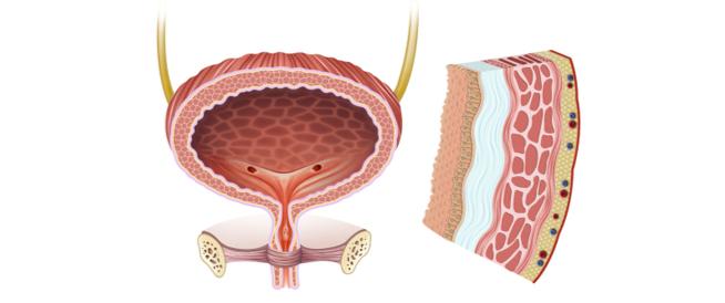 التهاب جدار المثانة: ما هي الأعراض والأسباب؟
