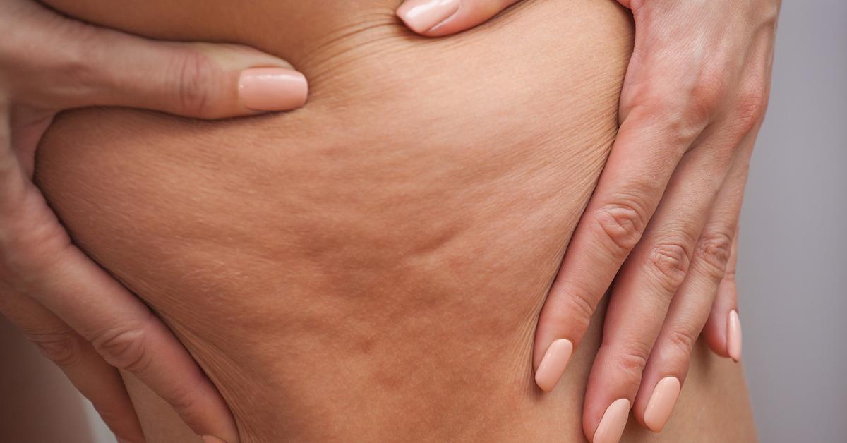 كيف يتم علاج سيلوليت الأفخاذ ويب طب
