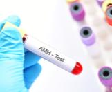 ماذا تعرف عن تحليل AMH