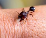 كيف يكون علاج قرصة النمل