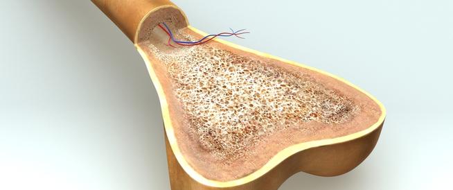 أعراض فشل النخاع العظمي وأسبابه وطرق العلاج