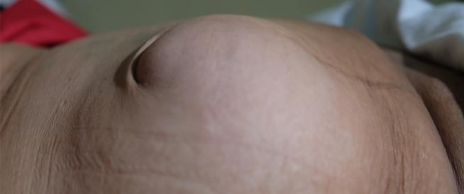 أعراض الفتق بعد العملية القيصرية ومعلومات هامة