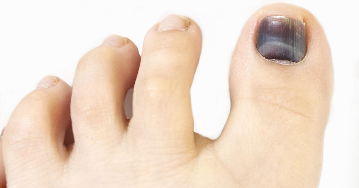 علاج احتباس الدم تحت الأظافر والإسعافات اللازمة ويب طب