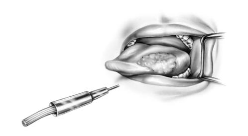 عملية استئصال سرطان اللسان