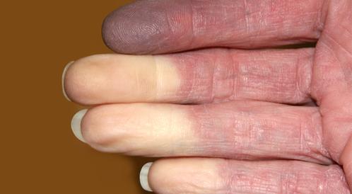 أسباب وعلاج احتباس الدم في الأصبع ويب طب