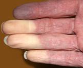 أسباب وعلاج احتباس الدم في الأصبع