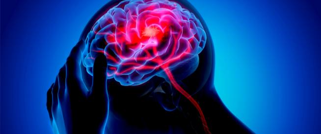 ما هي أعراض الجلطة الدماغية والغيبوبة؟