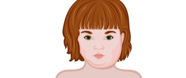 التهاب الغدة النكافية عند الأطفال: أبرز المعلومات