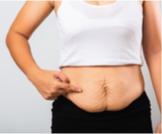 ترهلات البطن بعد الولادة: معلومات هامة