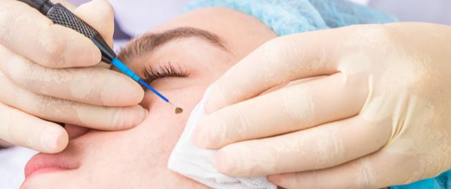 طرق إزالة الشامات من الوجه