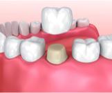 تلبيس الأسنان بعد سحب العصب