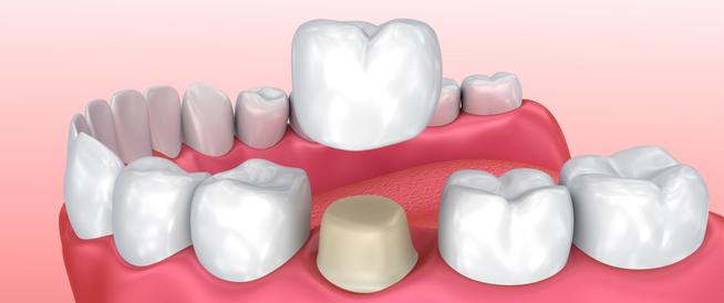تلبيس الأسنان بعد سحب العصب أهم المعلومات ويب طب