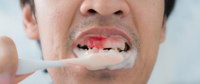 أسباب نزيف اللثة عند غسيل الأسنان وكيفية الوقاية والعلاج