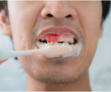 أسباب نزيف اللثة عند غسل الأسنان