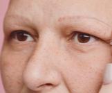 تساقط شعر الحواجب: أهم المعلومات